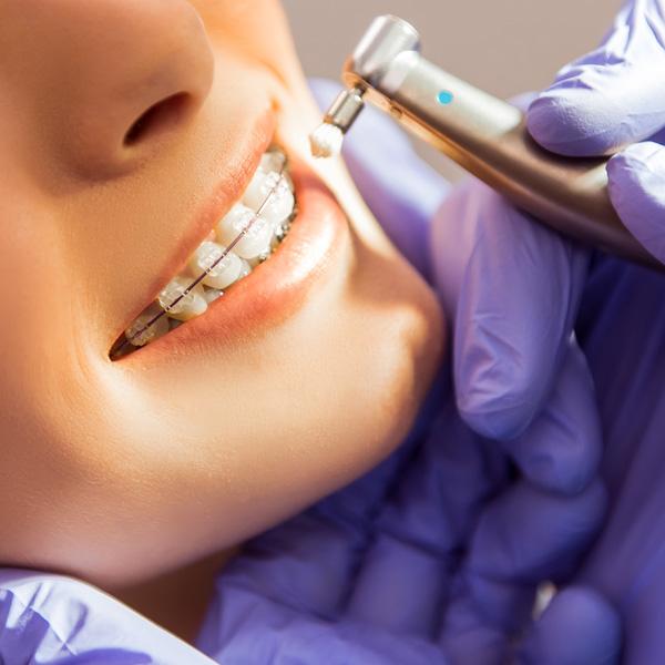 http://panoramadental.pl/ortodoncja-2/